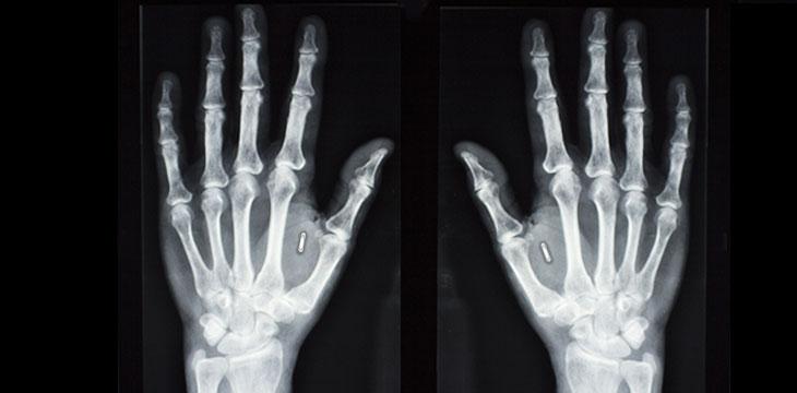 Cryptocurrency radiology klibrt csgo betting